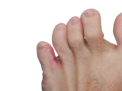 athletes foot cure melbourne